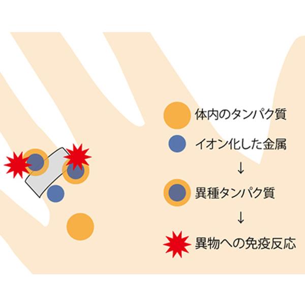金属アレルギー指輪姫路